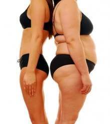 What Effect Does Exercise Have on Stretch Marks?2